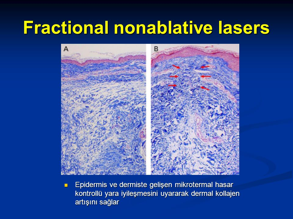 Fractional nonablative lasers