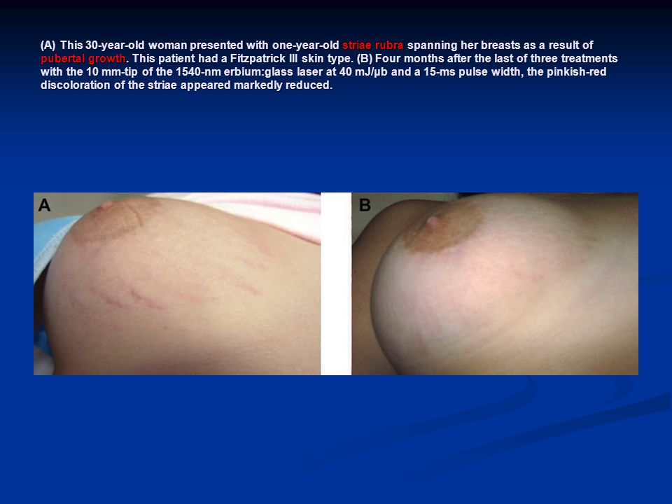 (A) This 30-year-old woman presented with one-year-old striae rubra spanning her breasts as a result of pubertal growth.