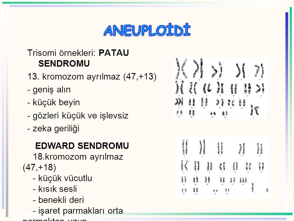 ANEUPLOİDİ Trisomi örnekleri: PATAU SENDROMU 13. kromozom ayrılmaz (47,+13) - geniş alın - küçük beyin - gözleri küçük ve işlevsiz - zeka geriliği