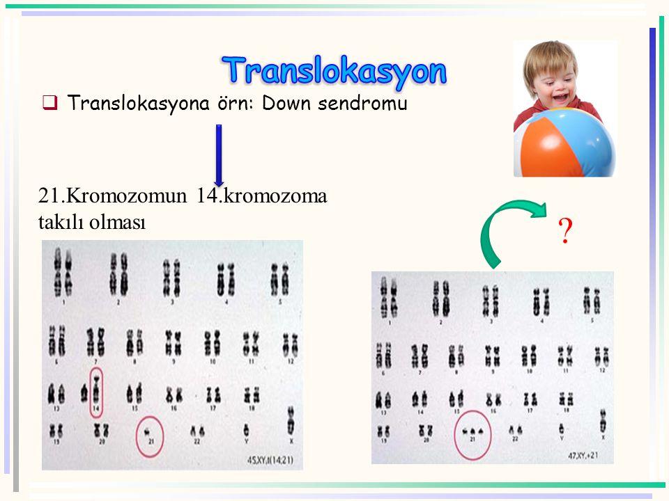 Translokasyon 21.Kromozomun 14.kromozoma takılı olması