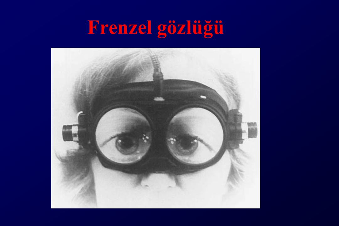 Frenzel gözlüğü