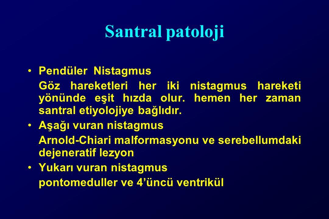 Santral patoloji Pendüler Nistagmus