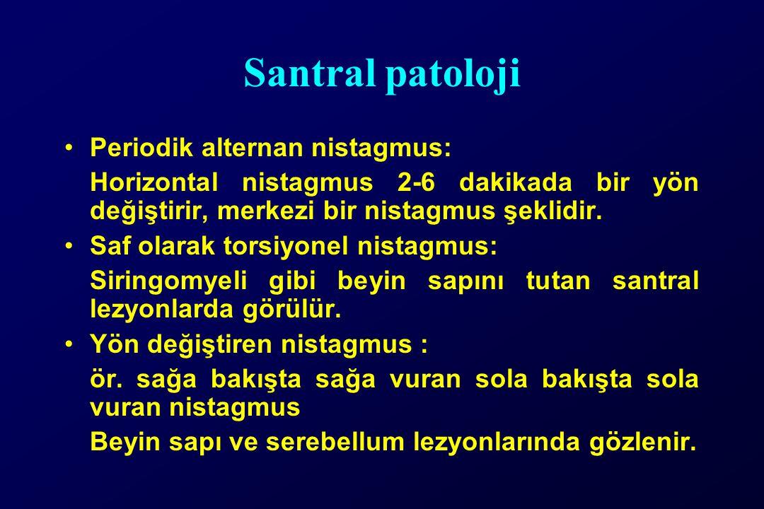 Santral patoloji Periodik alternan nistagmus: