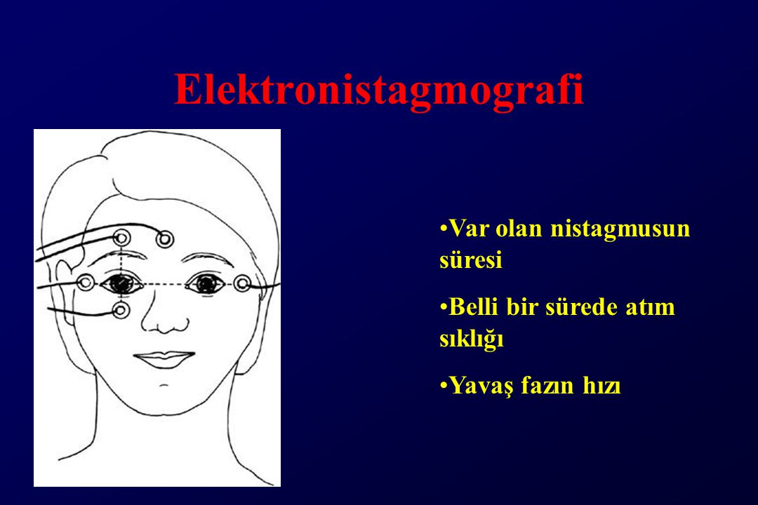 Elektronistagmografi