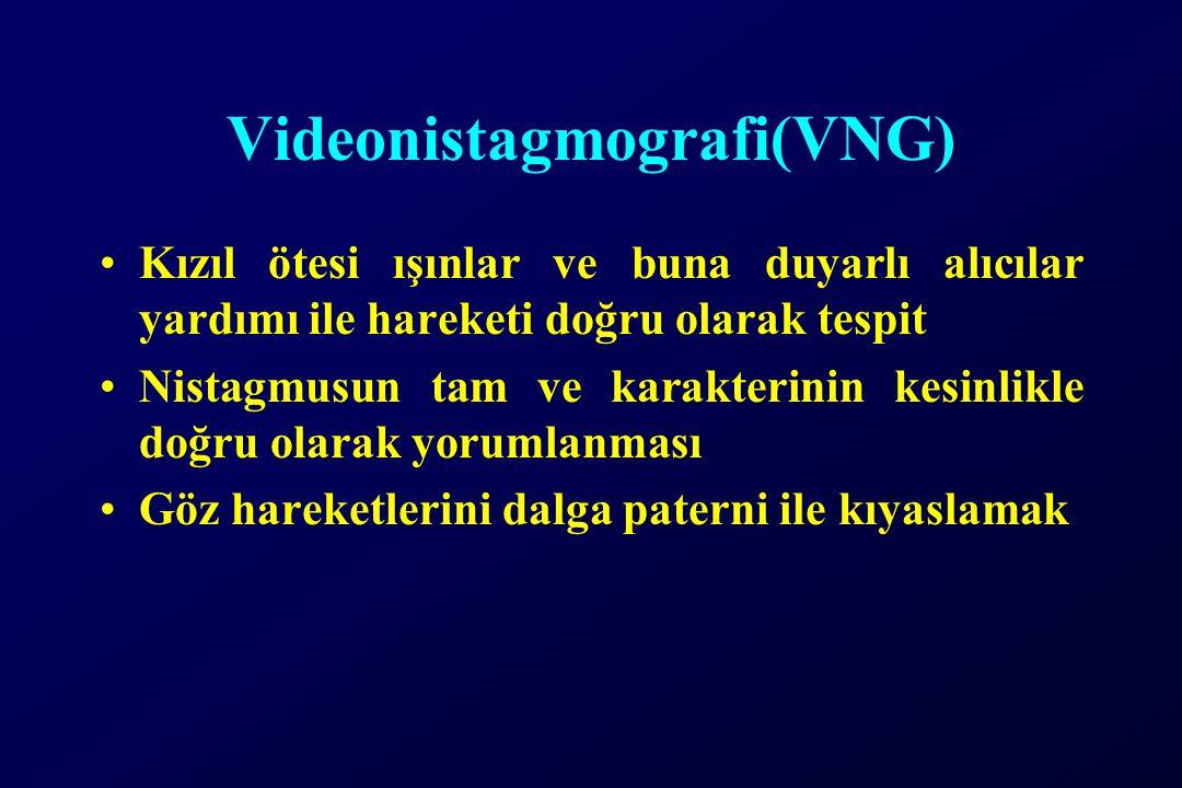 Videonistagmografi(VNG)