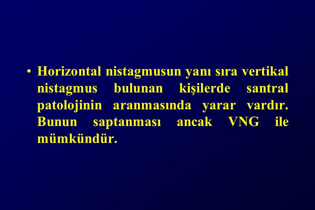 Horizontal nistagmusun yanı sıra vertikal nistagmus bulunan kişilerde santral patolojinin aranmasında yarar vardır.