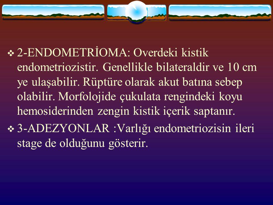 2-ENDOMETRİOMA: Overdeki kistik endometriozistir