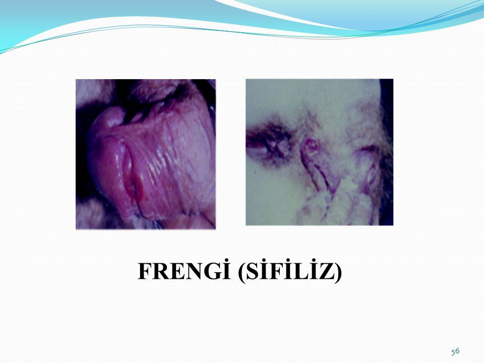 FRENGİ (SİFİLİZ)