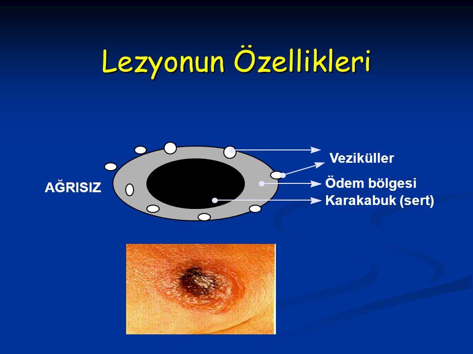Lezyonun Özellikleri Veziküller Ödem bölgesi AĞRISIZ Karakabuk (sert)