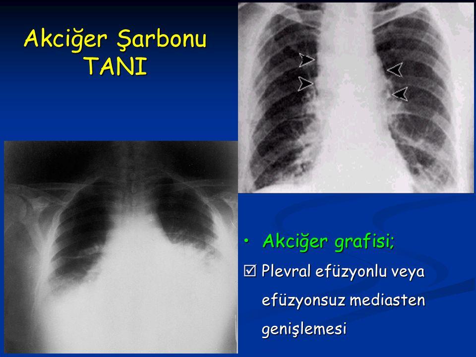 Akciğer Şarbonu TANI Akciğer grafisi; Plevral efüzyonlu veya