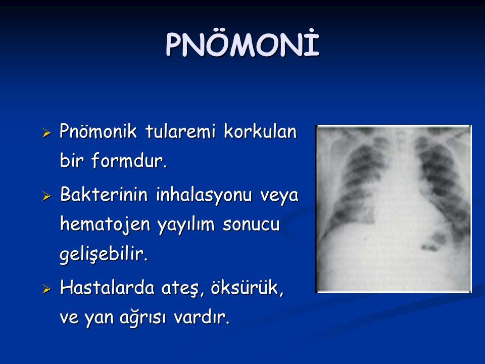 PNÖMONİ Pnömonik tularemi korkulan bir formdur.