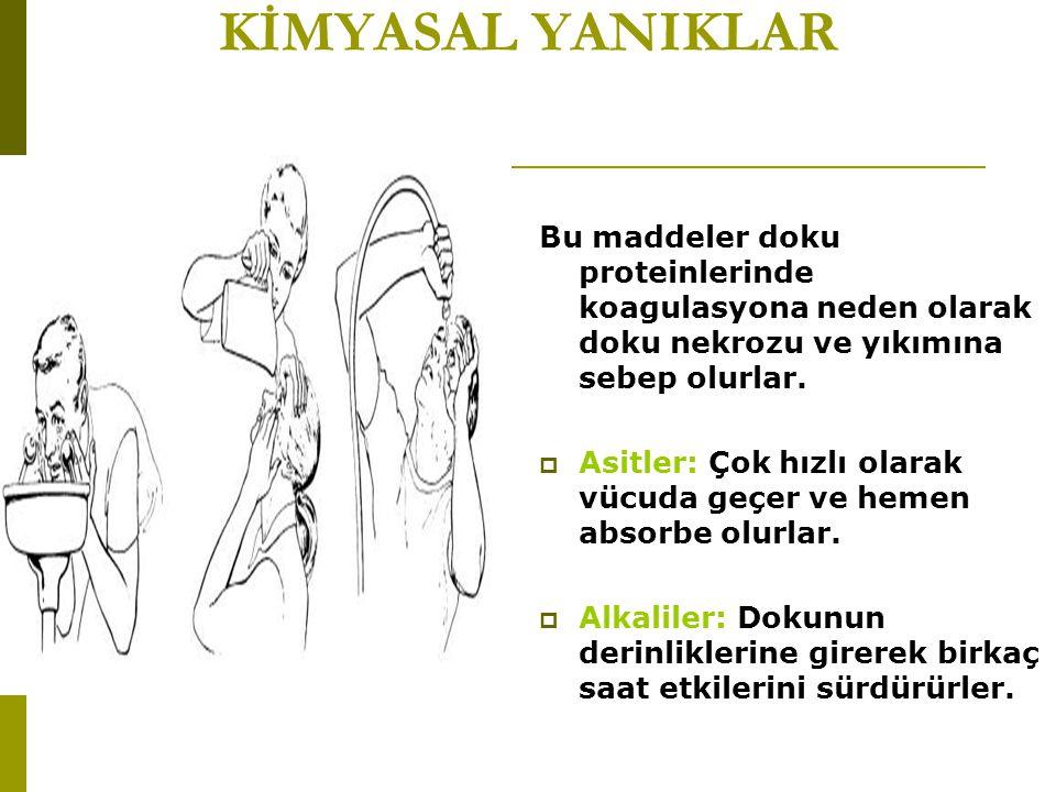 KİMYASAL YANIKLAR Bu maddeler doku proteinlerinde koagulasyona neden olarak doku nekrozu ve yıkımına sebep olurlar.