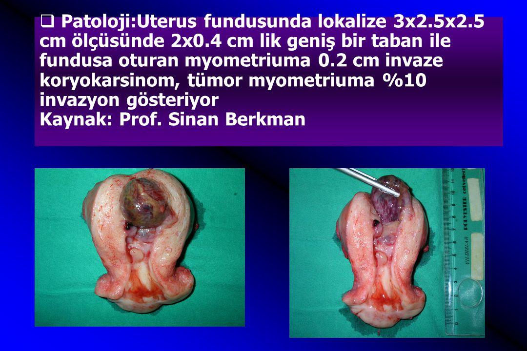 Patoloji:Uterus fundusunda lokalize 3x2. 5x2. 5 cm ölçüsünde 2x0