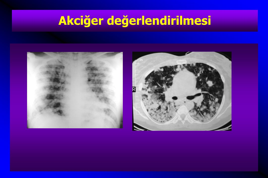 Akciğer değerlendirilmesi