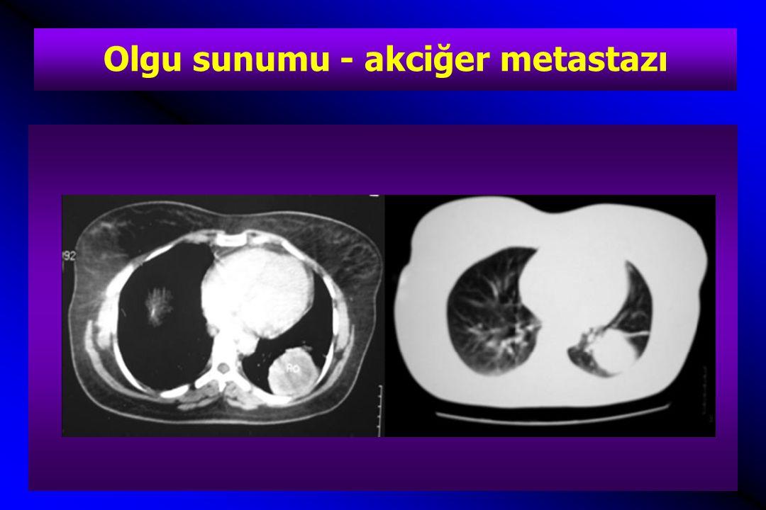 Olgu sunumu - akciğer metastazı