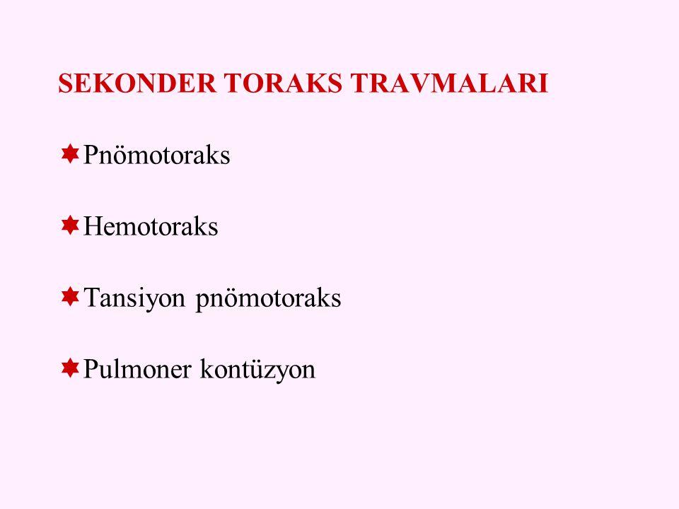SEKONDER TORAKS TRAVMALARI
