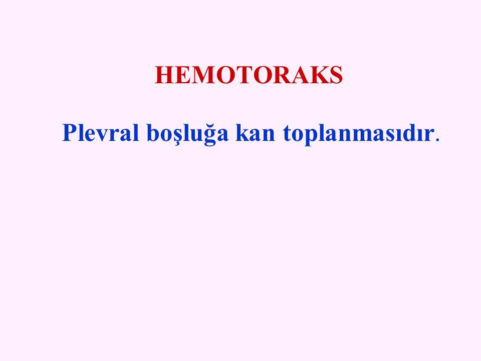 HEMOTORAKS Plevral boşluğa kan toplanmasıdır.