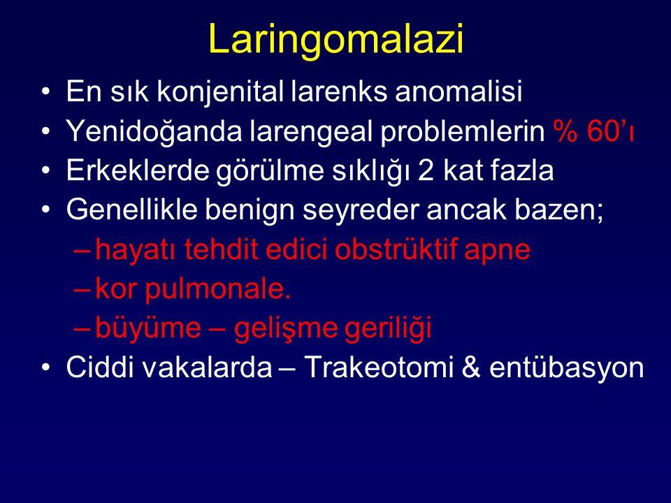 Laringomalazi En sık konjenital larenks anomalisi