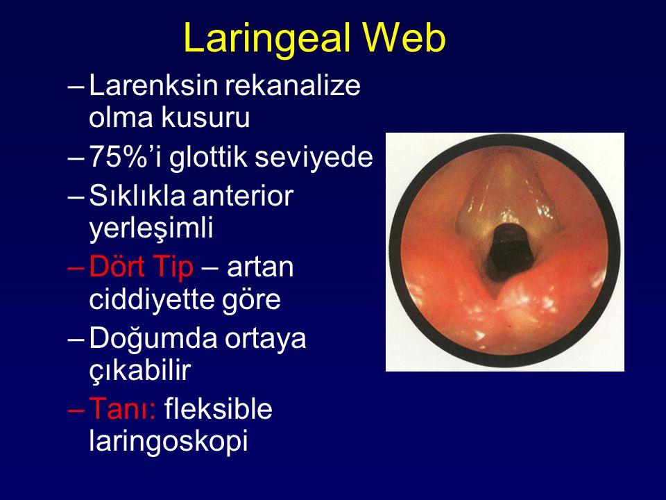 Laringeal Web Larenksin rekanalize olma kusuru 75%'i glottik seviyede