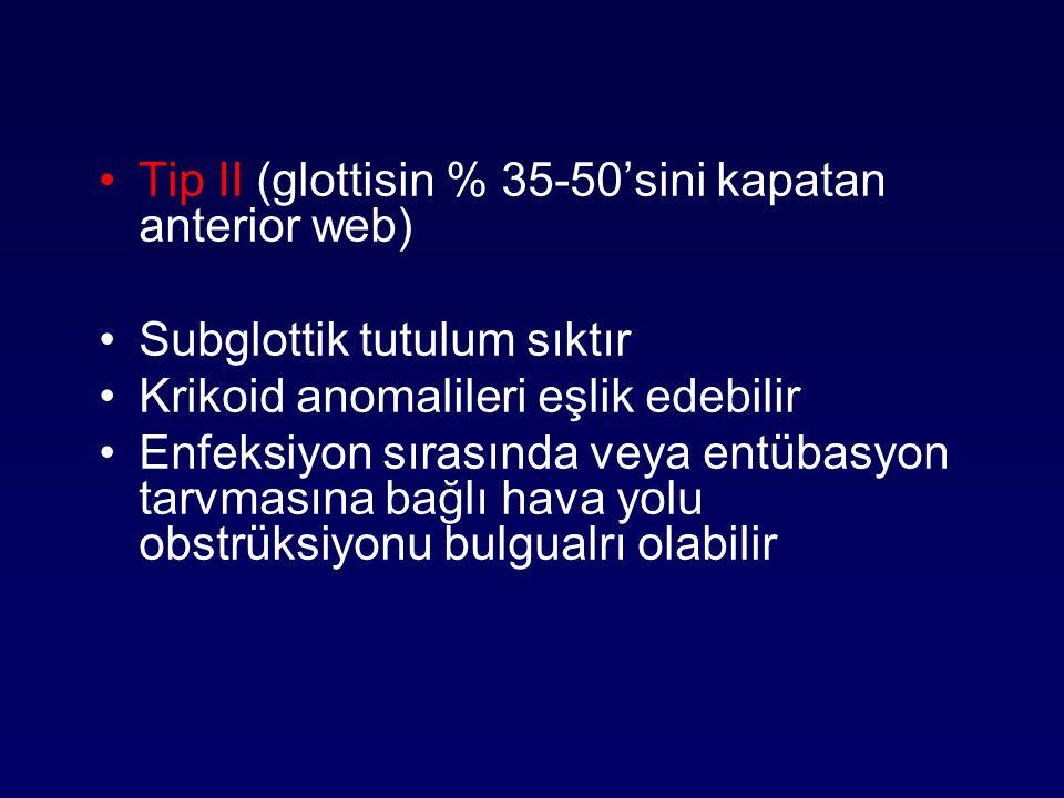 Tip II (glottisin % 35-50'sini kapatan anterior web)