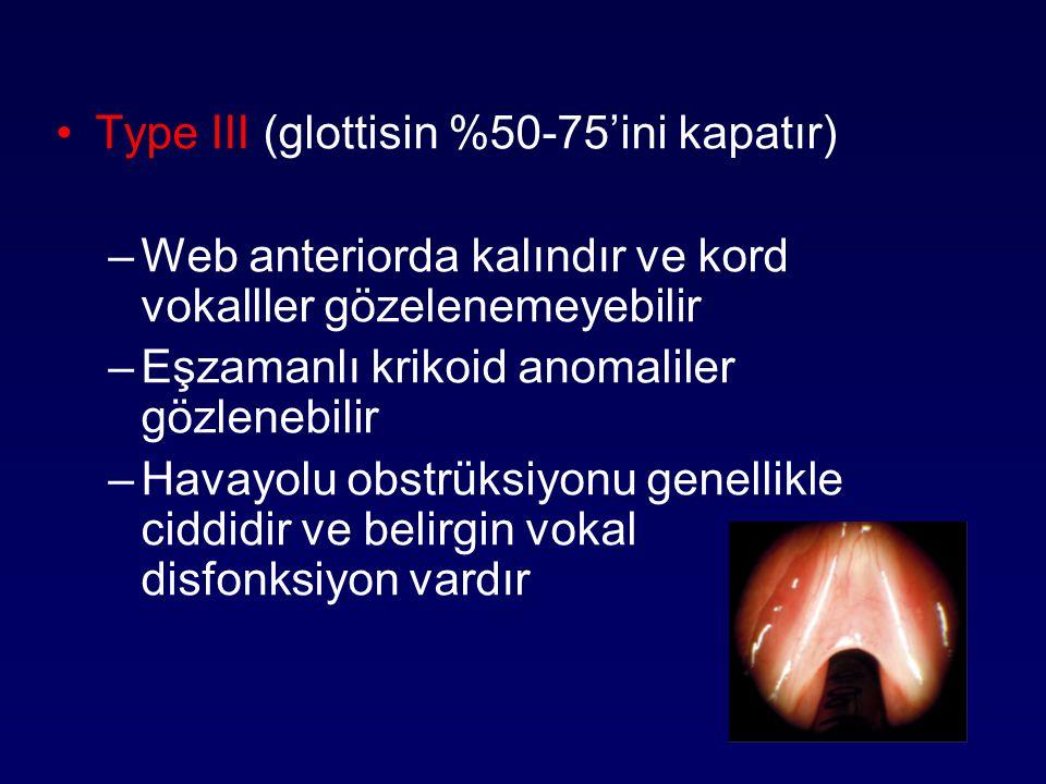 Type III (glottisin %50-75'ini kapatır)