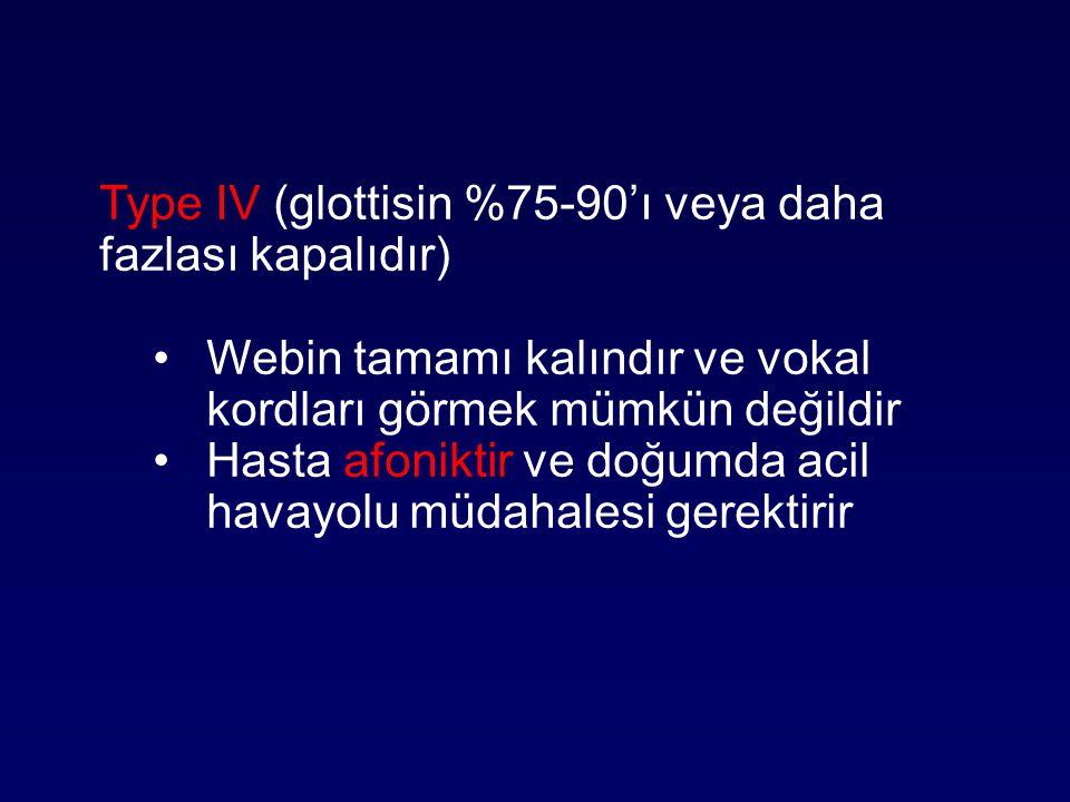Type IV (glottisin %75-90'ı veya daha fazlası kapalıdır)
