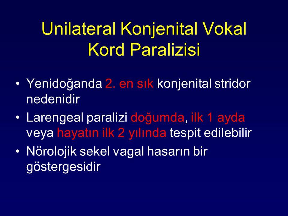 Unilateral Konjenital Vokal Kord Paralizisi