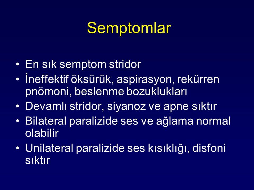 Semptomlar En sık semptom stridor
