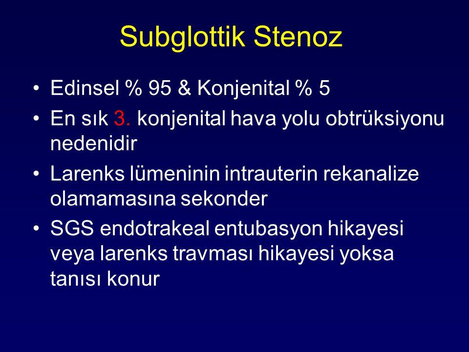 Subglottik Stenoz Edinsel % 95 & Konjenital % 5