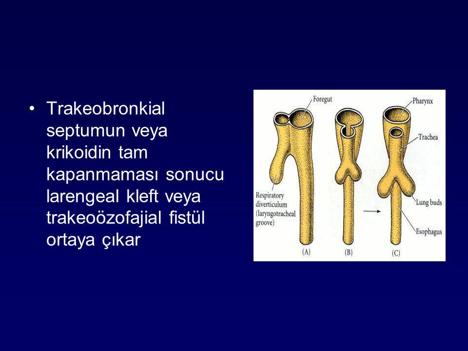 Trakeobronkial septumun veya krikoidin tam kapanmaması sonucu larengeal kleft veya trakeoözofajial fistül ortaya çıkar