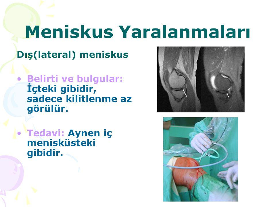 Meniskus Yaralanmaları