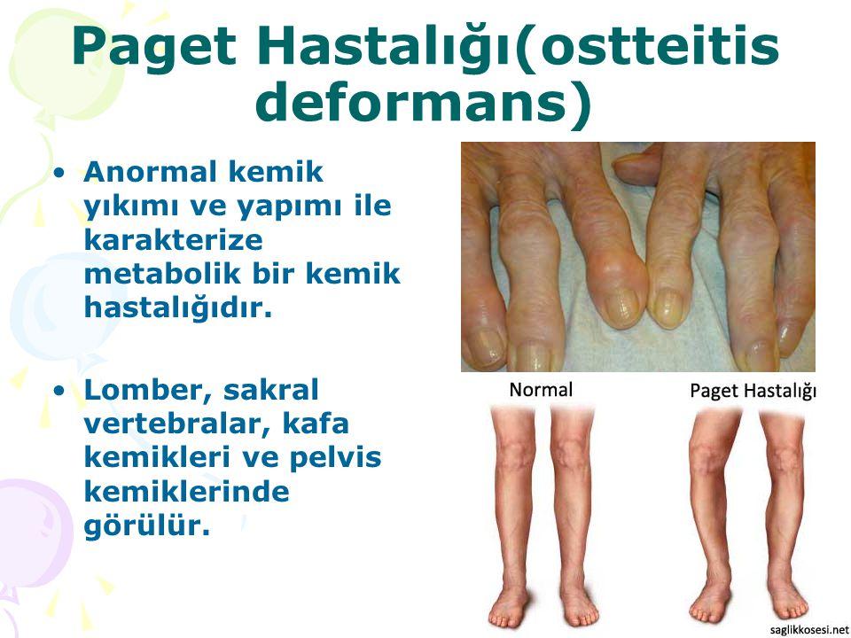 Paget Hastalığı(ostteitis deformans)