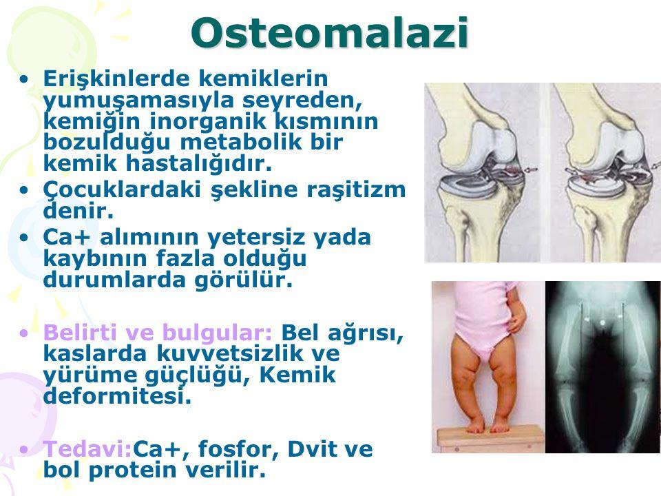 Osteomalazi Erişkinlerde kemiklerin yumuşamasıyla seyreden, kemiğin inorganik kısmının bozulduğu metabolik bir kemik hastalığıdır.