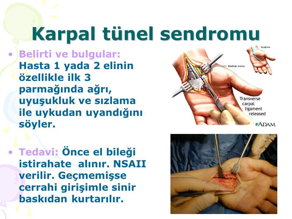 Karpal tünel sendromu Belirti ve bulgular: Hasta 1 yada 2 elinin özellikle ilk 3 parmağında ağrı, uyuşukluk ve sızlama ile uykudan uyandığını söyler.