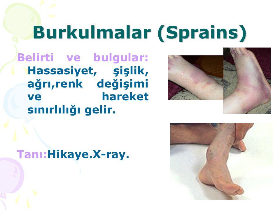 Burkulmalar (Sprains)