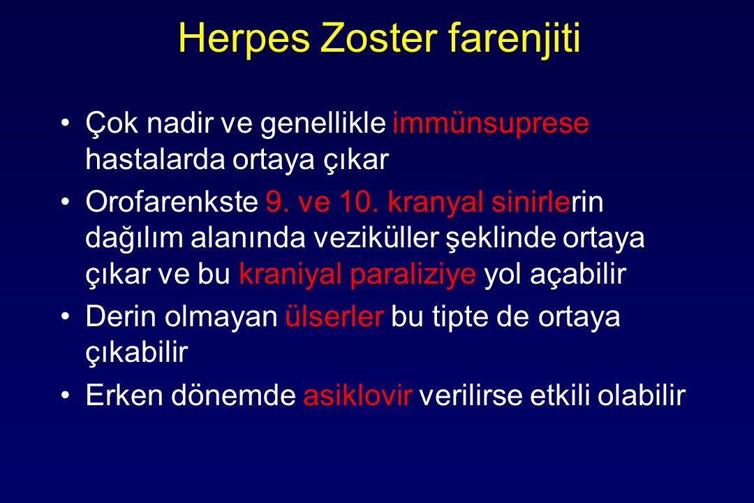 Herpes Zoster farenjiti