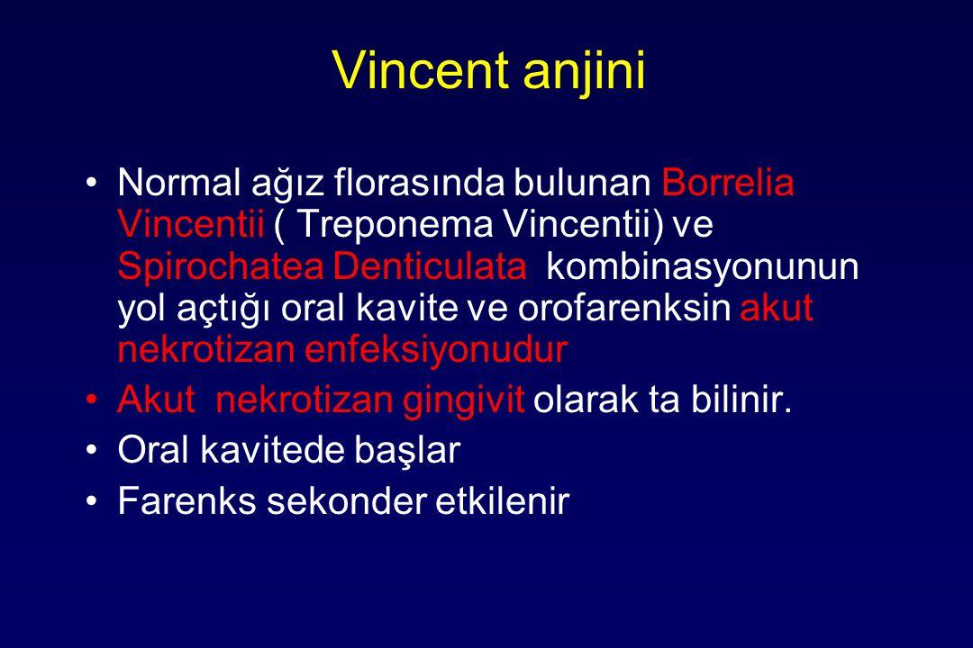 Vincent anjini