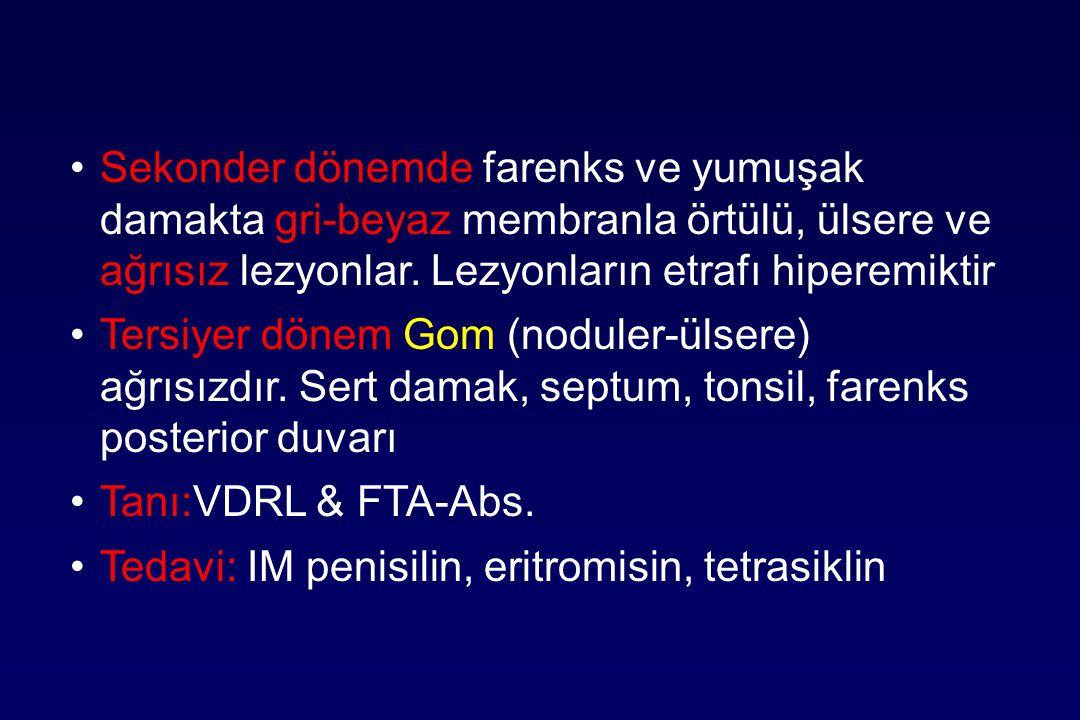 Sekonder dönemde farenks ve yumuşak damakta gri-beyaz membranla örtülü, ülsere ve ağrısız lezyonlar. Lezyonların etrafı hiperemiktir