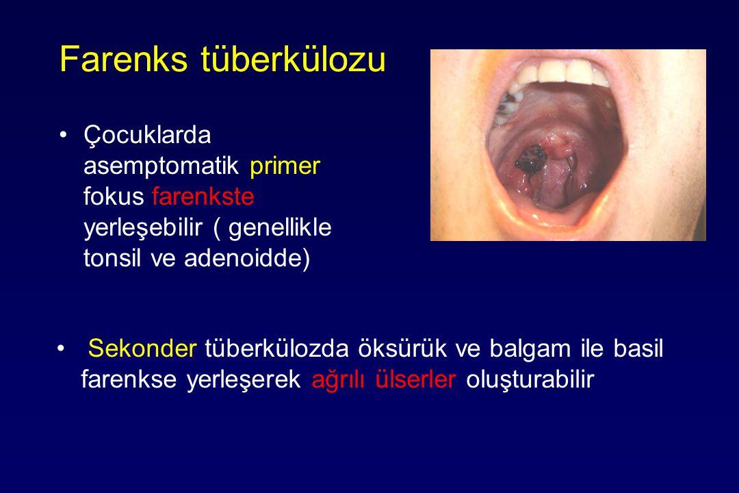 Farenks tüberkülozu Çocuklarda asemptomatik primer fokus farenkste yerleşebilir ( genellikle tonsil ve adenoidde)