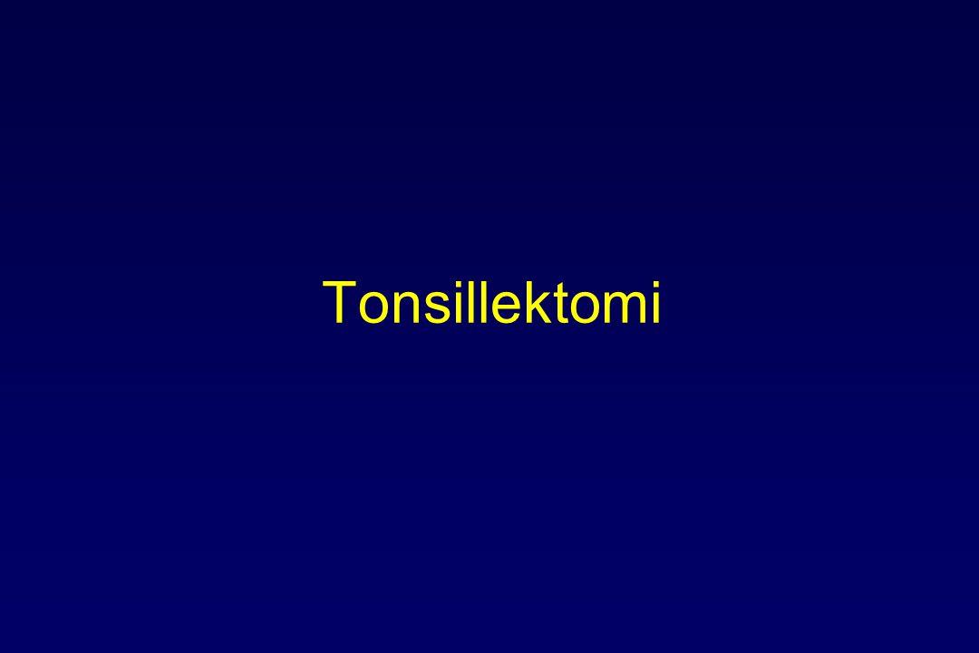 Tonsillektomi