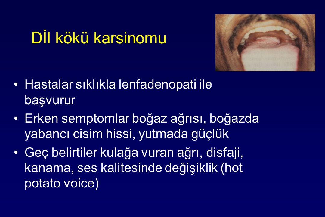 Dİl kökü karsinomu Hastalar sıklıkla lenfadenopati ile başvurur