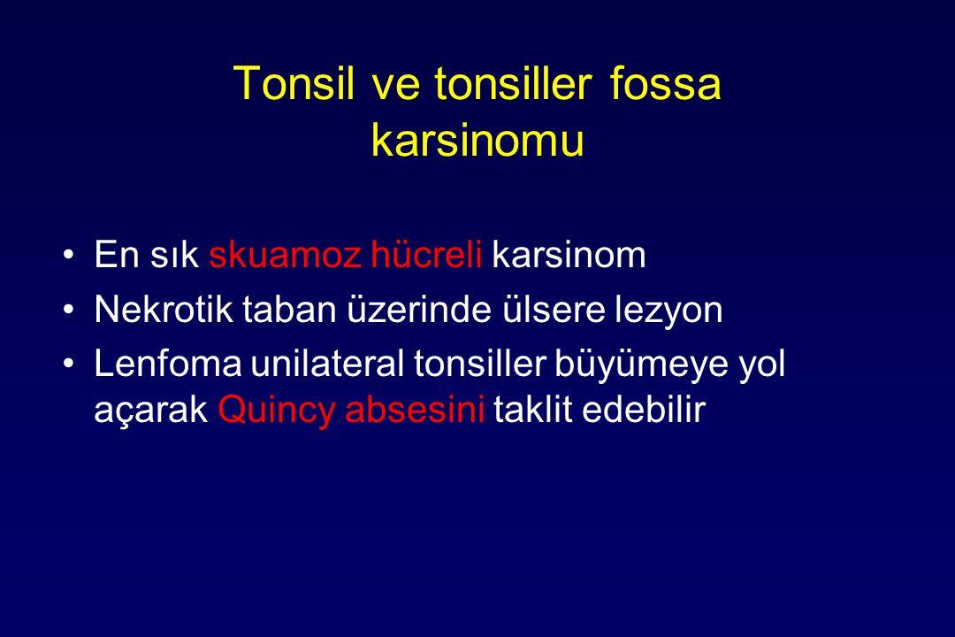 Tonsil ve tonsiller fossa karsinomu