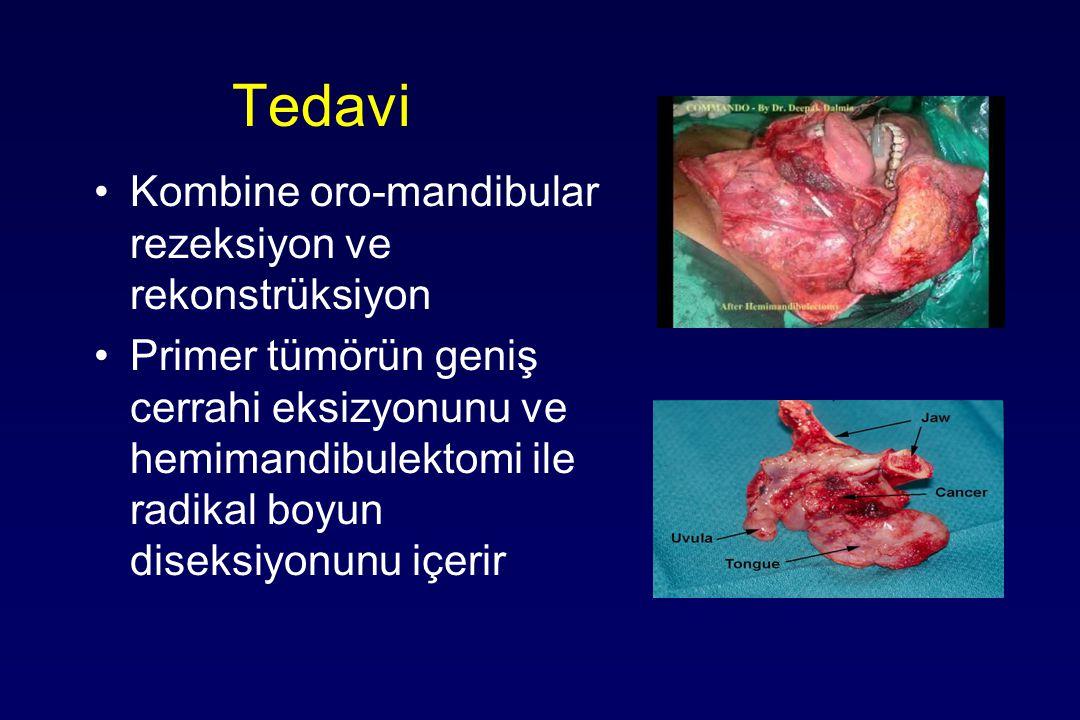 Tedavi Kombine oro-mandibular rezeksiyon ve rekonstrüksiyon