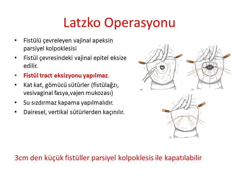 Latzko Operasyonu Fistülü çevreleyen vajinal apeksin parsiyel kolpoklesisi. Fistül çevresindeki vajinal epitel eksize edilir.