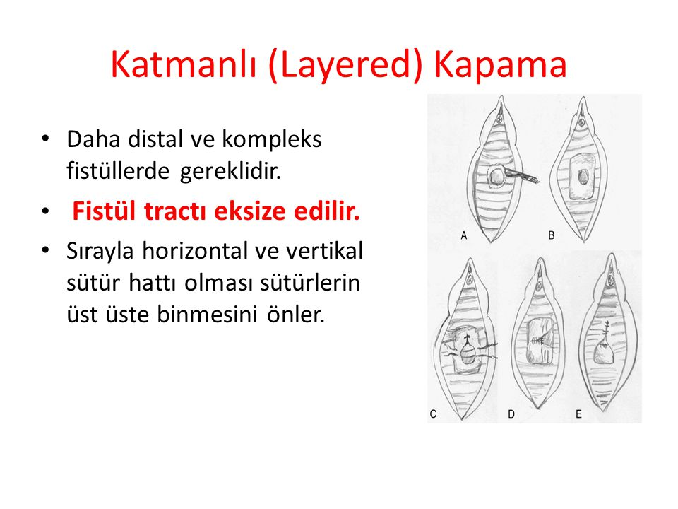 Katmanlı (Layered) Kapama