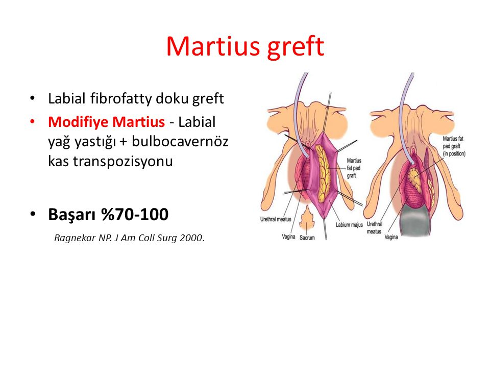 Martius greft Başarı %70-100 Labial fibrofatty doku greft