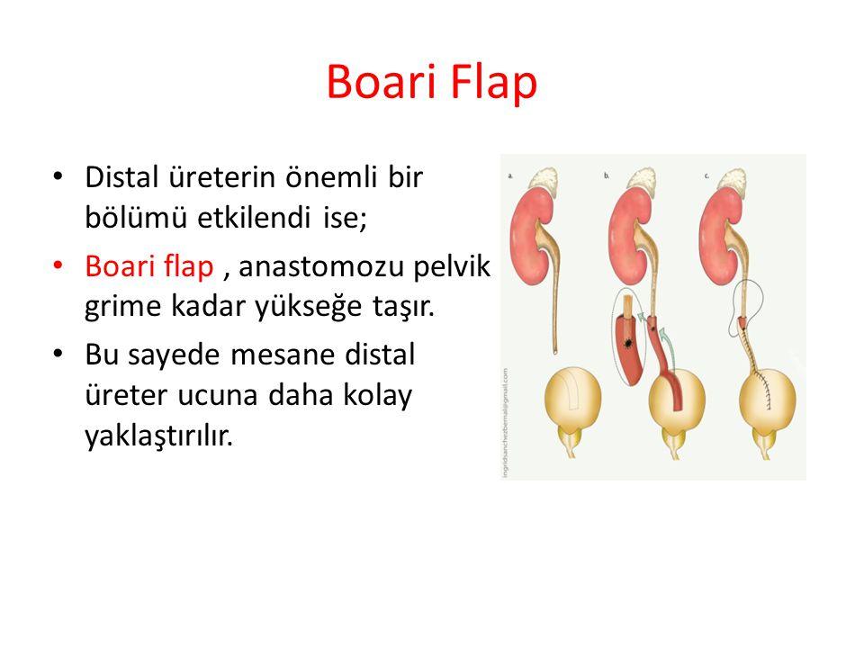Boari Flap Distal üreterin önemli bir bölümü etkilendi ise;