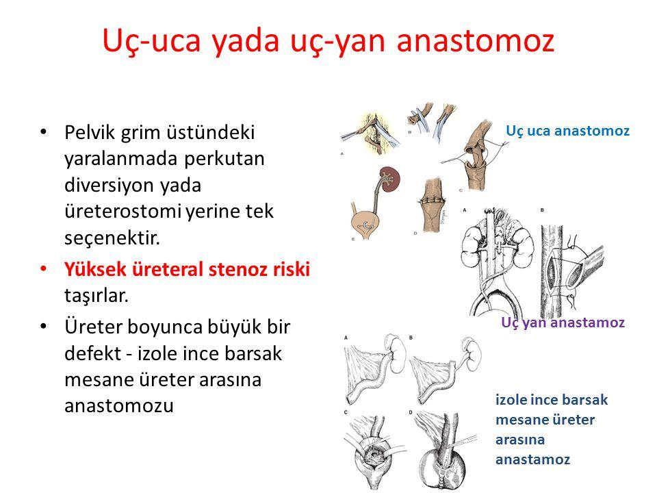 Uç-uca yada uç-yan anastomoz