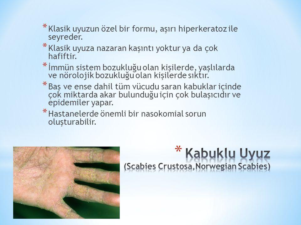 Kabuklu Uyuz (Scabies Crustosa,Norwegian Scabies)