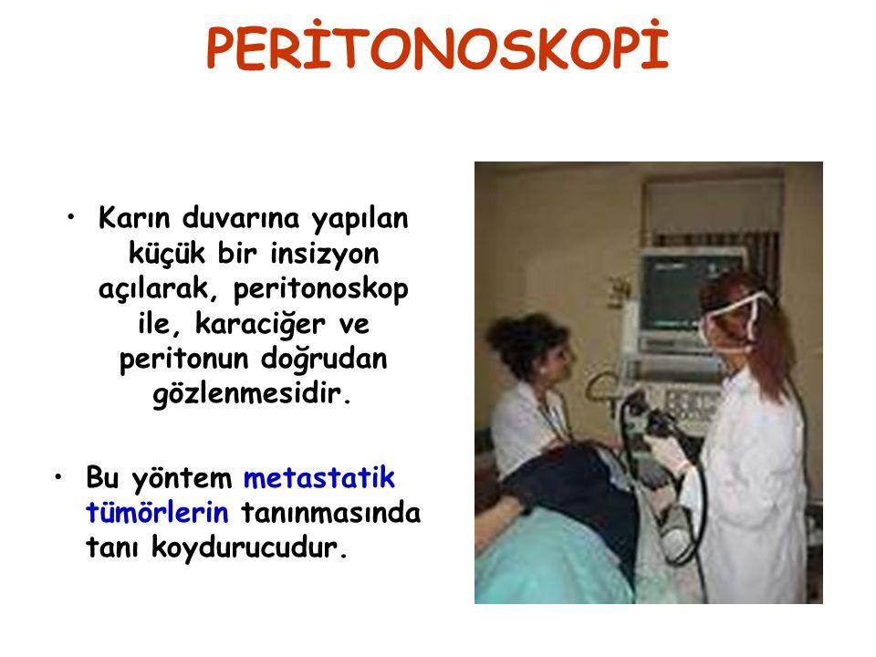 PERİTONOSKOPİ Karın duvarına yapılan küçük bir insizyon açılarak, peritonoskop ile, karaciğer ve peritonun doğrudan gözlenmesidir.